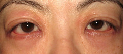 My eyes about 2 days ago