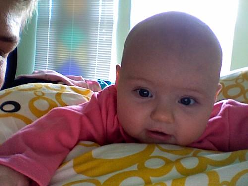 wednesday baldness.