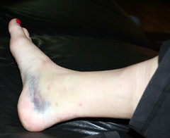 Horked Ankle
