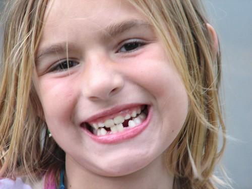 Juli- Toothless wonder
