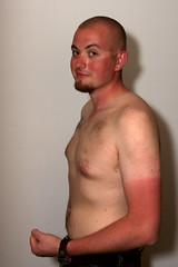 Wear sunscreen.