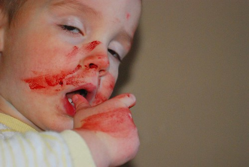 bloody nose1