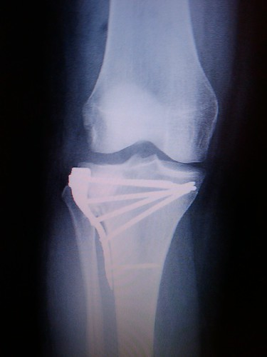 Tibial Plateau Fracture. Right Knee.