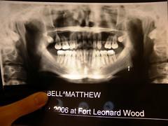 teeth three years ago