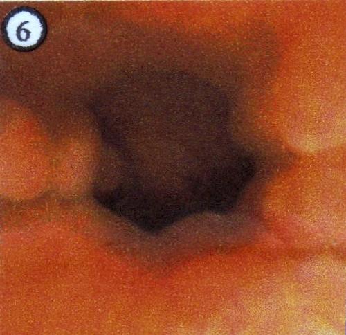 Várices esofágicas, endoscopia