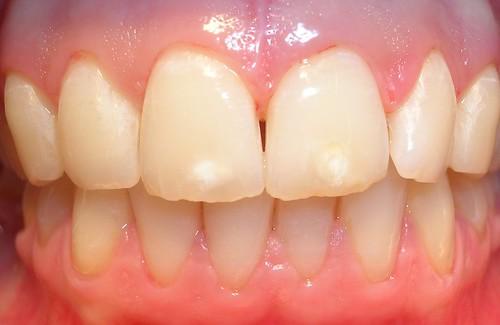 Sin Gingivitis, sin caries y con la boca total y absolutamente sana