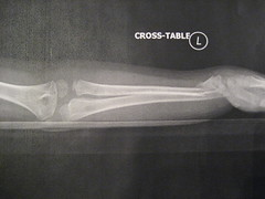 Allysa's left arm, she can haz broke it.