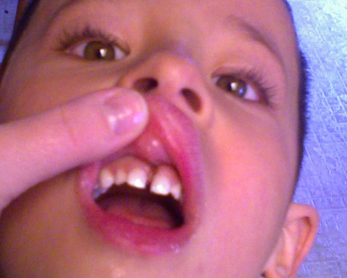 Sai post frenectomy