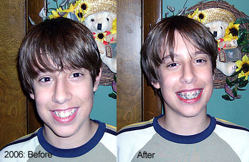 The Beginning of Braces - 2006