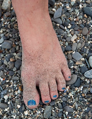 "Hannah's sandy foot • <a style=""font-size:0.8em;"" href=""http://www.flickr.com/photos/54494252@N00/3845765487/"" target=""_blank"">View on Flickr</a>"