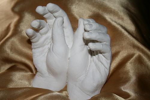 Sean's hand cast in cement