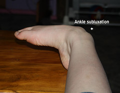Ankle Subluxation