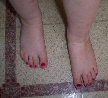 max_feet