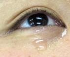 eye-namida