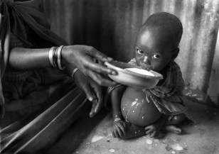 Salvageable? malnourished child