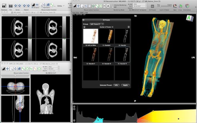 Imagen médica digital