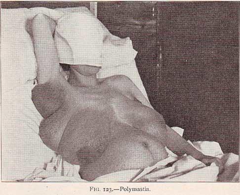 polymastia