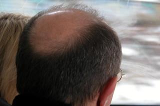 balding head in bus