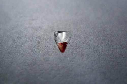 Glass Shard From Steve's Foot