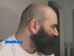 Beard! Part Two