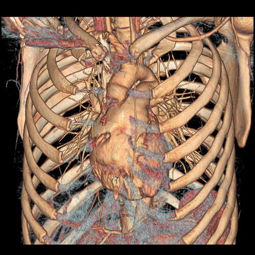 Interior chest cavity