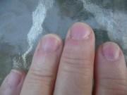ugly nails - sharing