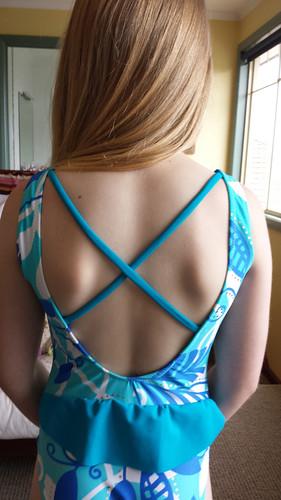 back strap fix