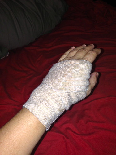 Ghost Post and Injured Hand (3/3)