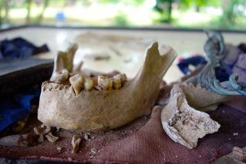 Found after heavy rainfall - Killing Fields, Cambodia