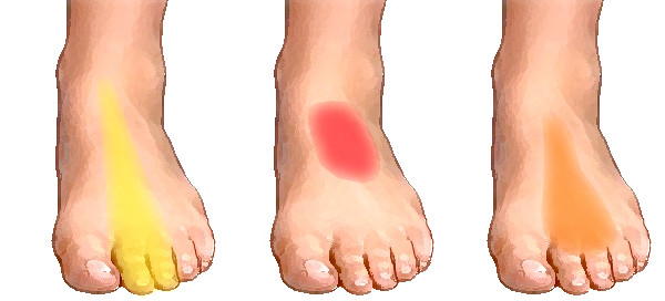 Foot Pain in the Top of the Arch