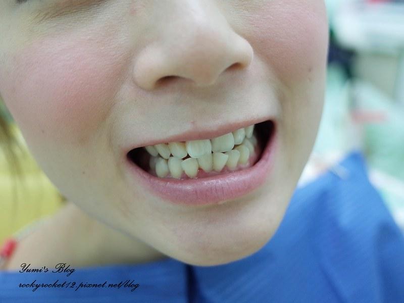 *牙套日記*矯正牙齒變美麗。我也是牙套女孩了 @ 洋娃娃的夢幻城堡♡MAKE UP BEAUTY :: 痞客邦