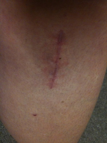 My scar... nearly 2 months later