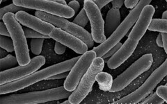 Escherichia coli, Escherichia coli, NIAID, htt...