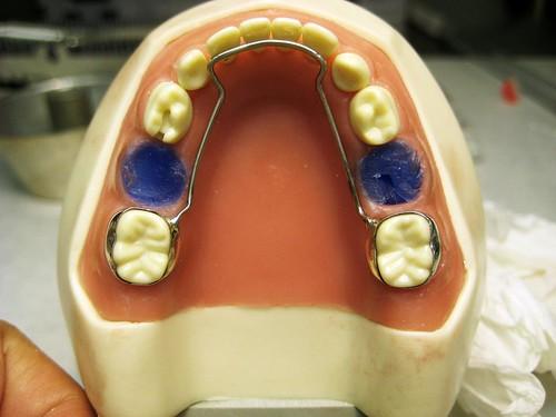 mandibular lingual arch SM, pt.6