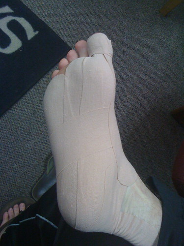 strained ligament