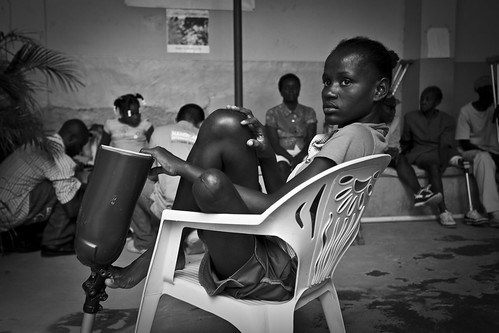 Girl-Sitting-on-Chair-with-Prosthetic-B+W