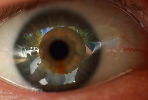 [eyeball close up]