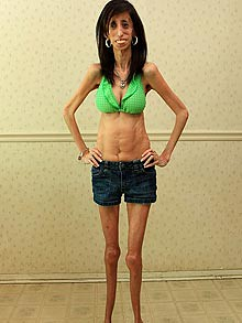 Lizzie Velasquez has a rare and undiagnosed syndrome that prevents her from putting on weight