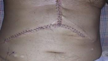 Liver Transplant Scar Tattoo