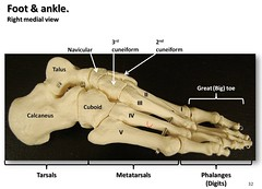 Bones of the foot and ankle, medial view with ...