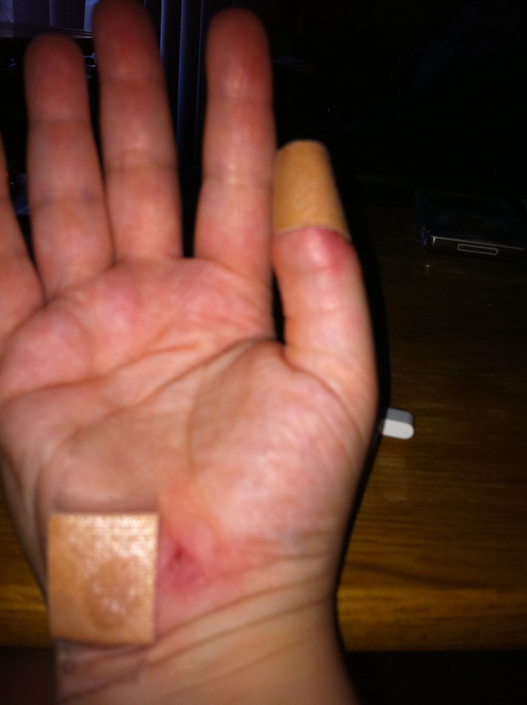 tore up hand