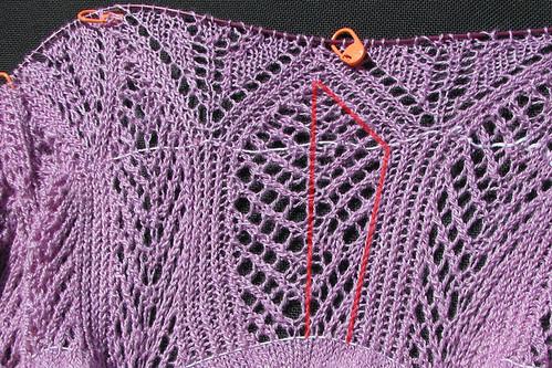 knit surgery