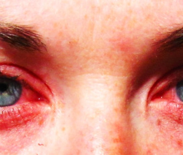 Day  Allergies
