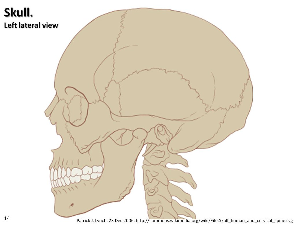 unlabeled skull diagram inferior view sebaceous cyst lateral axial skeleton visual atlas
