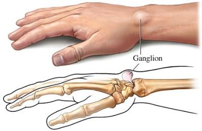 Cara Mengempeskan Ganglion