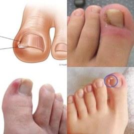 Obat Cantengan di jempol kaki