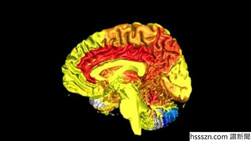 brain-blood-activity_700_394