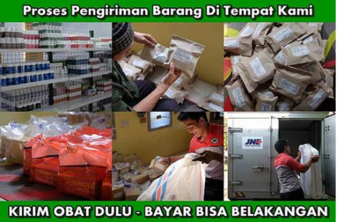 Obat Penghilang Singkayo Herbal, Di Tasikmalaya Jawa Barat