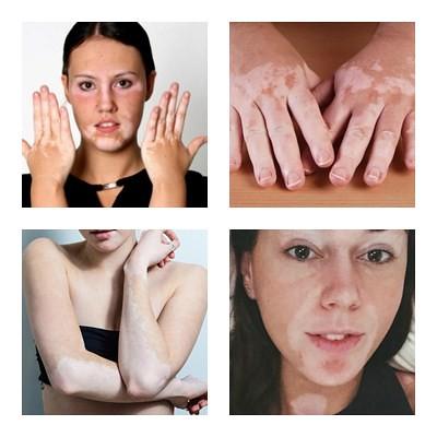 Penyebab Vitiligo Dan Pengobatannya