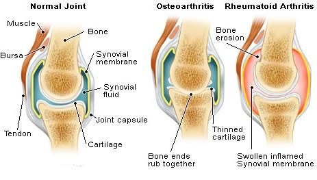 Cara Mengatasi Pengapuran Sendi Dan Tulang Secara Herbal